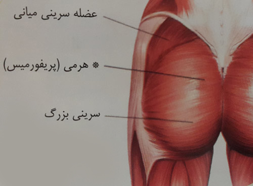 کشش عضله هرمی ( پریفورمیس )